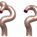 Artery with / without Aneurysm